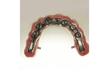Условно-съемный мостовидный протез с винтовой фиксацией на ультракоротких имплантатах Bicon