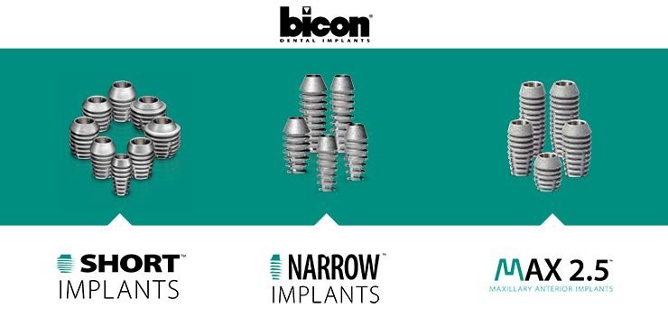 Имплантаты Bicon
