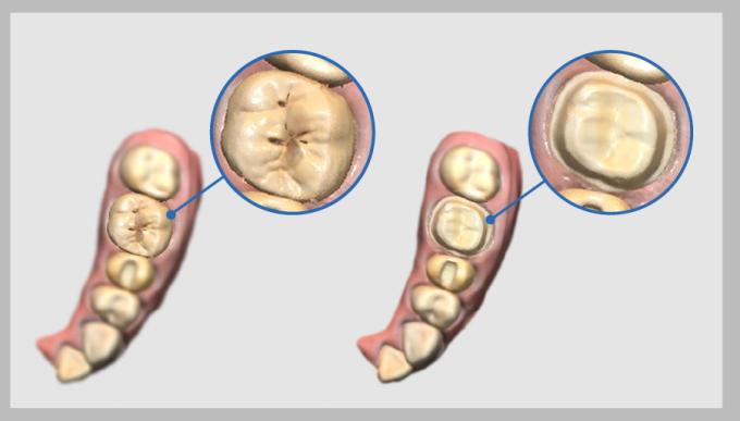 скан зуба до препарирования
